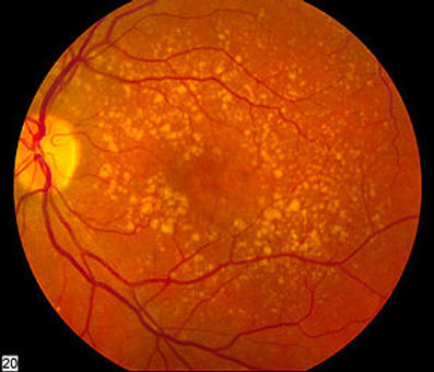 300px-Intermediate_age_related_macular_d