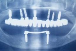 radio implant Moinard crozet.jpg