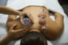 cupping therapy image 2.jpg