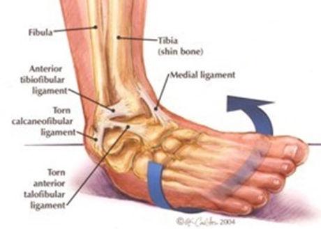 Lateral Ankle Sprain.jpg