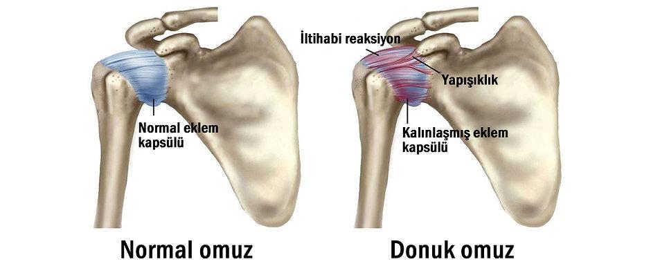 Donuk Omuz.jpg