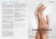 Radiesse brochure Sixmoredays