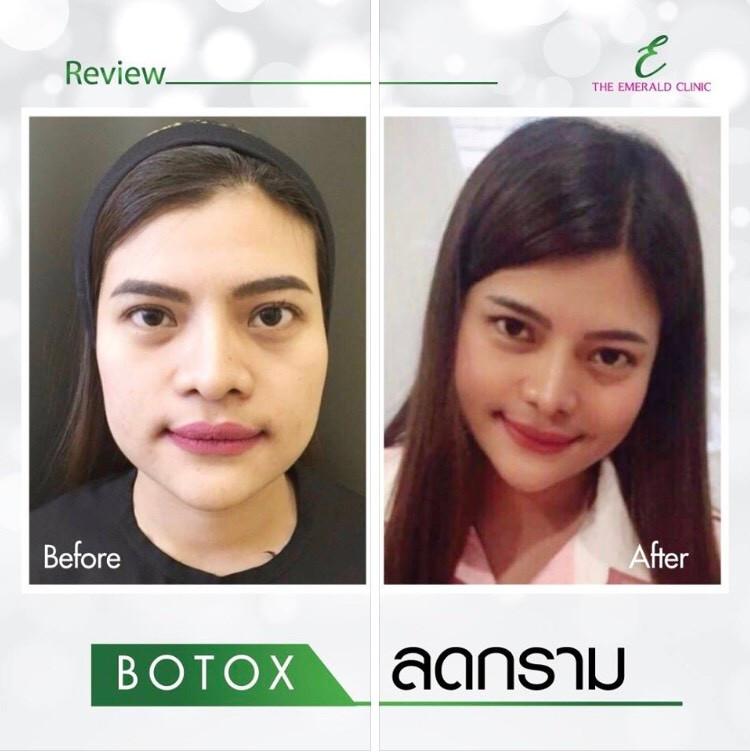 botox4.jpg