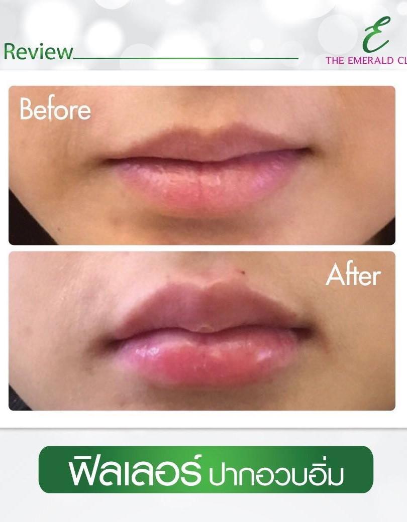 filler lips2.jpg