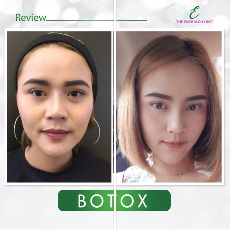 botox lift.jpg