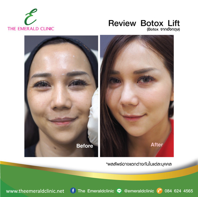 Review_TheEmerald-Clinic-Botox1.jpg