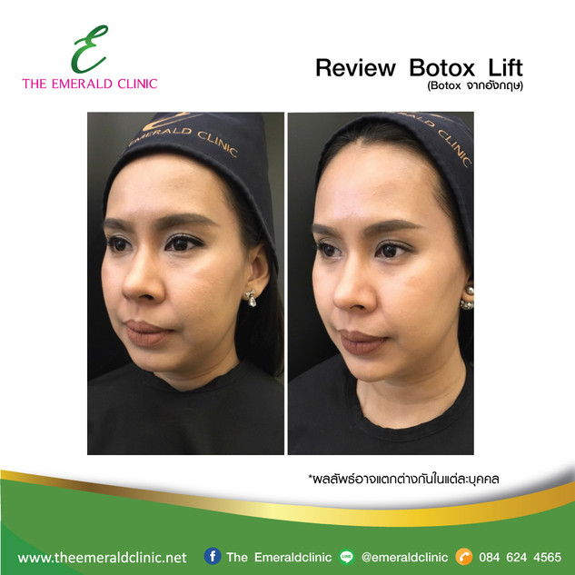 Review_TheEmerald-Clinic-Botox-lift-3.jp