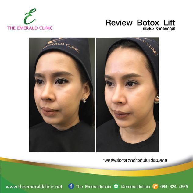Review_TheEmerald-Clinic-Botox-lift-3.jp