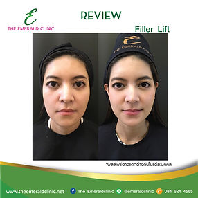 Review_TheEmerald-Clinic_Filler-Lift.jpg