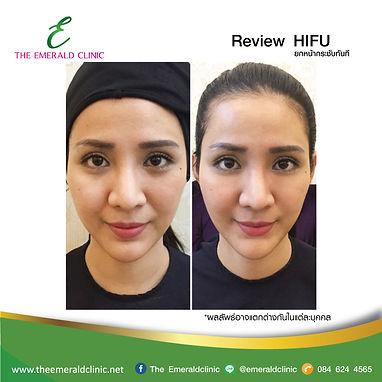 Review_TheEmerald-Clinic-HIFU.jpg