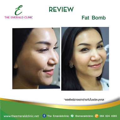 Review_TheEmerald-Clinic-Fat-bomb2.jpg