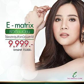 E-matrix 9,999.jpg