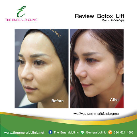 Review_TheEmerald-Clinic-Botox.jpg