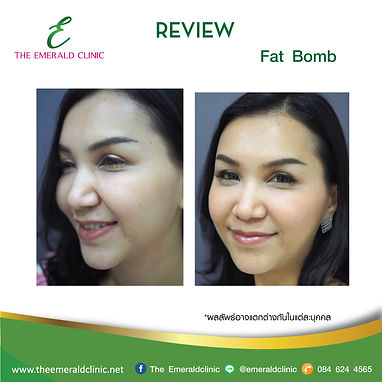 Review_TheEmerald-Clinic-Fat-bomb1.jpg