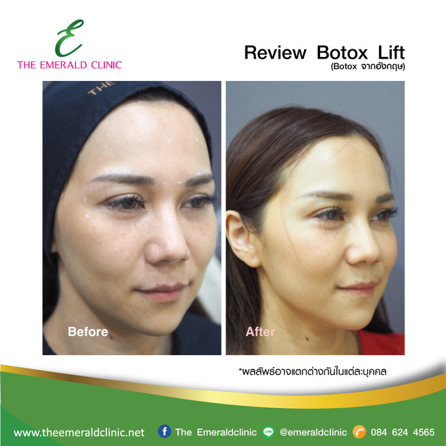 Review_TheEmerald-Clinic-Botox2.jpg
