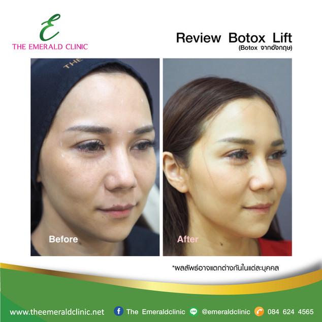 Review_TheEmerald-Clinic-Botox2.jpg