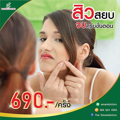 Pro สิว 690(1040x4010px)-01.jpg