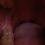 Thumbnail: Max Mouth