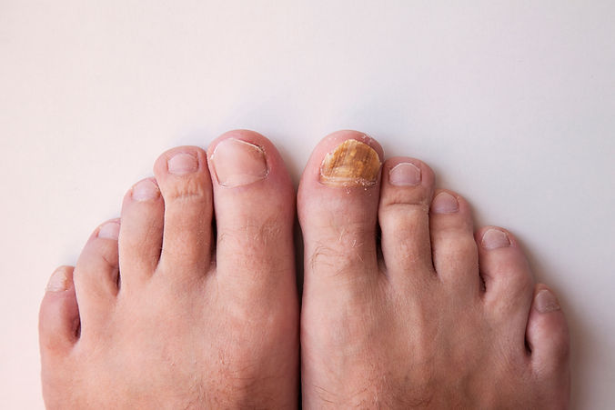 Nail fungus on legs. Nail disease..jpg