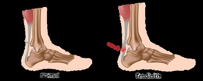 achilles-tendon-probems.png