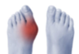 Female foot with bunion on big toe.jpg