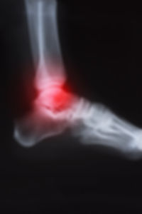 X ray image of ankle with arthritis.jpg