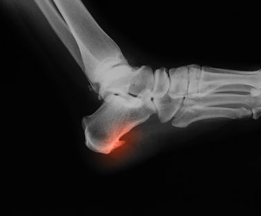 X-ray image of calcaneus shows heel spur