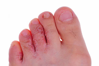 athlete's foot.jpg
