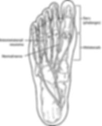 F-66-and-F-135-Neuroma-2009.jpg