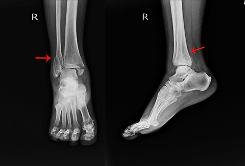 X-ray Right Ankle A female 64 year old a