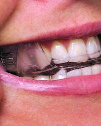 oral appliance.jpg