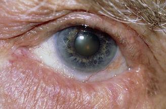 in turning eyelid.jpg