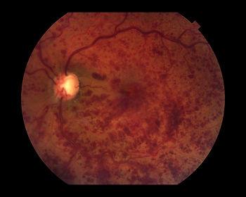 retinal vein occlusion.jpg