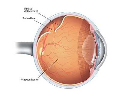 Retinal Detachment.PNG