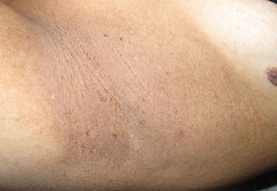 after skin tag removal advanced electrolysis