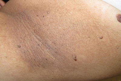 skin tags before removal advanced electrolysis