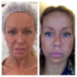PDO thread face lift rebecca luxton