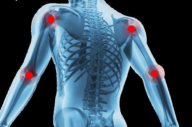 kisspng-joint-pain-knee-pain-osteoarthri