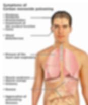 290px-CO_toxicity_symptoms_(en).jpg