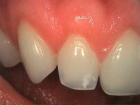 Après Greffe Dentaire