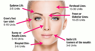 How Many Units of Botox do I need?