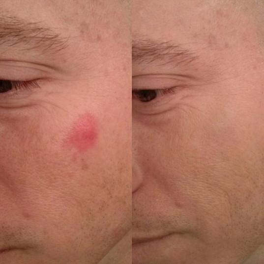 Birthmark Cover-up