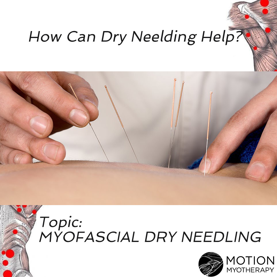 Dry Needling therapy for muscle trigger points and chronic pain.