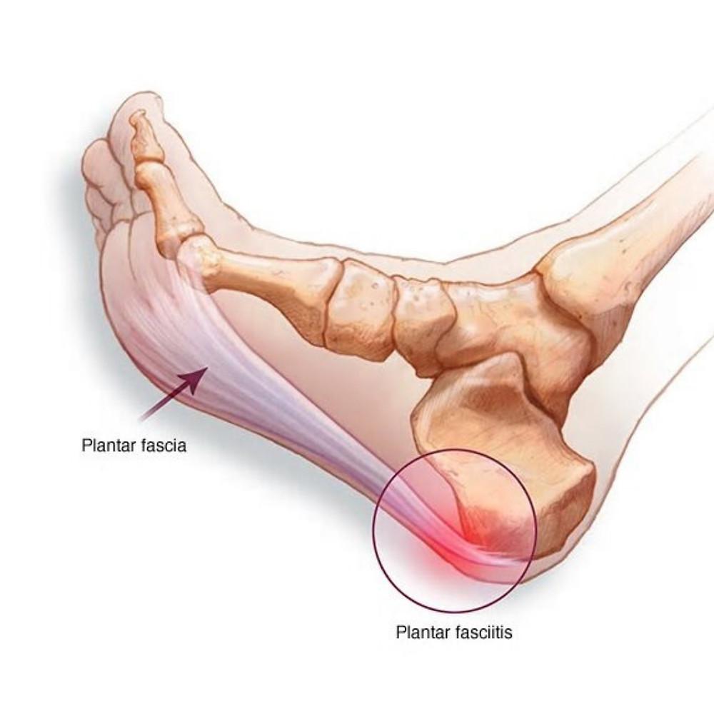Plantar Fasciitis Heel Foot Pain therapy