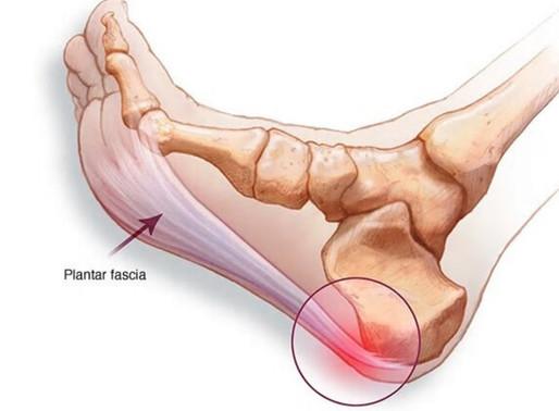 Plantar Fasciitis | Heel That Foot Pain