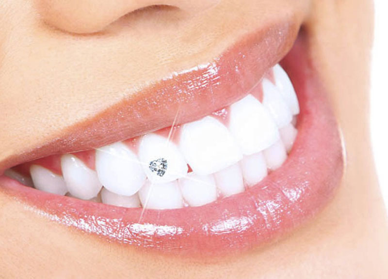 dental-jewels-2