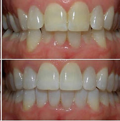 clear aligners, aligners, braces, clear braces, teeth