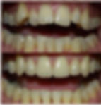 clear aligners, aligners, sdc