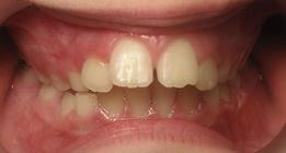 crooked teeth, age 7, RPE, GMA, dentofacial orthopedics