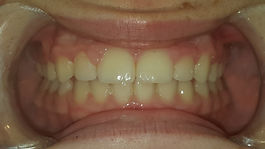 invisalign, before and after,